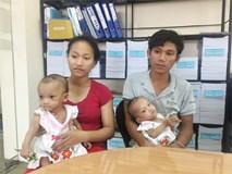 Cuộc sống mới của hai bé gái song sinh dính liền mông, không có hậu môn sau hơn 1 năm