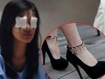 Nữ MC bị đồng nghiệp đi giày cao gót đạp mù mắt vì mâu thuẫn không đáng có