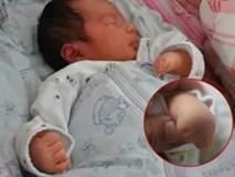 Con sinh ra không có ngón tay, biết nguyên nhân mẹ ôm đầu hối hận