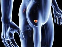 8 dấu hiệu cảnh báo ung thư tuyến tiền liệt, mọi quý ông đều nên đề phòng