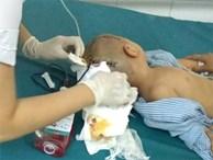 Bé trai 3 tuổi đi học ở trường mầm non bị tụ máu 1/4 não phải mổ cấp cứu