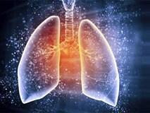 Dấu hiệu ung thư phổi: Nhiều người phát hiện bệnh quá muộn vì bỏ qua cảnh báo