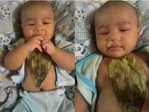 Chuyên gia cảnh báo việc các mẹ rủ nhau dùng lá trầu không đắp lên ngực thông đờm cho trẻ