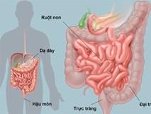 Danh y chỉ lý do gây bẩn đường ruột, cách làm sạch ruột ai cũng nên thực hiện