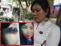 """Bị """"người yêu"""" của chồng kéo đến nhà đánh bầm mặt, chảy máu đầu, người phụ nữ hơn 1 năm đi kiện"""