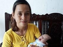 """9 tháng mang thai """"ngồi trên đống lửa"""" của mẹ có con dị tật nội tạng nằm ngoài ổ bụng"""
