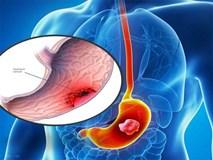 Ung thư dạ dày -