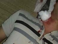 Nam thanh niên bị đạn găm trúng cổ khi đang nằm trong nhà