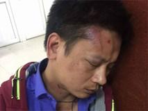 Bảo vệ bệnh viện phụ sản Hà Nội bị tố đánh người nhà bệnh nhân dã man