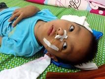 Sau trận sốt cao, bé trai khỏe mạnh thành người tàn phế, bố mẹ khốn khó vì gia cảnh ngặt nghèo