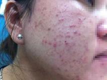 TP.HCM: Bôi mỹ phẩm tùy tiện lên da sau khi bắn laser, mặt người phụ nữ sưng vù, đỏ lừ như máu