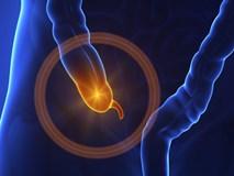 Một số cảnh báo sớm về bệnh ruột thừa
