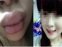 Phương pháp đơn giản để có đôi môi quyến rũ mà không cần phẫu thuật
