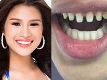 Nếu tháo hết răng sứ, liệu có ai dám nhìn Nguyễn Thị Thành khi cười?