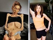 Hành trình ngoạn mục thay đổi nhan sắc của cô gái chỉ 18kg từng đối chọi với Thần Chết
