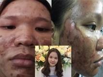 """Dùng kem trộn, một phụ nữ bị """"lột sạch"""" da mặt"""