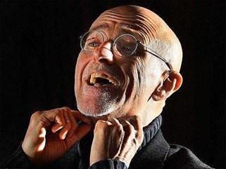 Bác sĩ Ý tuyên bố ghép đầu thành công trên người chết, chuẩn bị ghép trên người sống