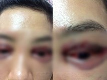 Vụ cô gái đi cắt mí mắt gây xôn xao MXH: Khi cô gái đến làm việc, chủ spa hỏi sao lại bêu xấu hình ảnh spa?