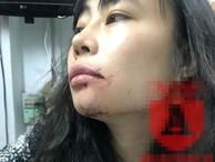 Nữ hành khách bị lái xe Uber đánh 'bầm mặt': Tôi cần một lời xin lỗi công khai!