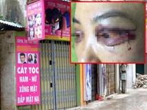 Lộ clip chủ spa đe dọa, ép cô gái bị phẫu thuật hỏng mí mắt phải xin lỗi