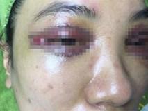 Xử phạt spa cắt mí hỏng khiến mắt khách hàng chảy máu