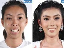 Buồn vì cả đời bị chê xấu, cô gái đi phẫu thuật thẩm mỹ về xinh như mộng khiến ai cũng xuýt xoa khen ngợi