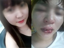 Đưa người gặp nạn vào bệnh viện, cô gái tốt bụng bị chính nạn nhân đánh rách môi, lệch sống mũi