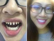 Muốn làm răng nên suy nghĩ cho thật kỹ rồi hãy quyết định!