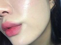 5 lưu ý quan trọng giúp làn da luôn ẩm mượt và môi ít bị bong tróc trong mùa lạnh