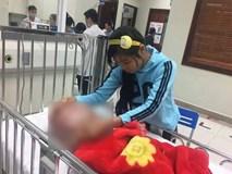 Bé trai 13 tháng tuổi đầu căng mọng vì mắc não úng thủy đã qua đời