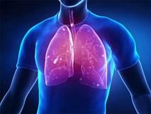 Cách phân biệt giữa ho thông thường và ho cảnh báo dấu hiệu sớm của bệnh ung thư phổi