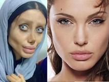 Cô gái phẫu thuật thẩm mỹ hơn 50 lần đề nhìn giống Angelina Jolie, kết quả trả về gia tinh Dobby