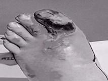 Ngón chân 'nổ tung' sau khi đá phải cạnh bàn