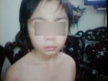 Bé trai 10 tuổi 'tháo chạy' khỏi bố và mẹ kế, tìm về ông bà nội vì bị bạo hành?