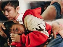 """Bé trai 10 tuổi bị bố và mẹ kế đánh rạn sọ não: """"Con xin mẹ, mẹ đừng đưa bố con vào tù"""""""