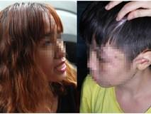 Vụ bé trai bị bố, mẹ kế hành hạ: Mẹ ruột lên tiếng vì sao 2 năm không gặp con
