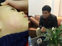 Bé trai 22 tháng tuổi bị bác sĩ tát đỏ mặt tại phòng khám