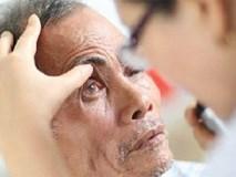 Biến chứng mắt do sốt xuất huyết nguy hiểm thế nào?