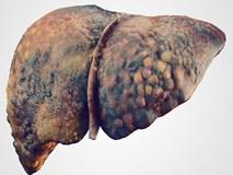 Có dấu hiệu này coi chừng viêm gan nhiễm độc