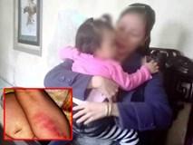 Sự thật bé gái 16 tháng tuổi nghi bị bạo hành tại điểm giữ trẻ tư nhân ở Huế