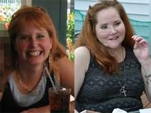 Dùng súng tự sát bất thành khiến dung mạo bị hủy hoại, người phụ nữ trải qua 49 cuộc phẫu thuật để làm lại cuộc đời