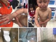 Bé trai 7 tuổi khóc thét khi kính cường lực nhà tắm bỗng dưng phát nổ