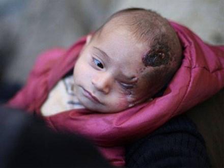 Syria: Xót thương bé 3 tháng tuổi chỉ còn một mắt
