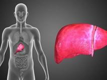 Ung thư gan phát triển trong lặng lẽ, khi có dấu hiệu này là gan đang 'kêu cứu'