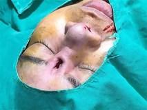 Sốc nặng hình ảnh người phụ nữ phẫu thuật hỏng, lòi cả silicon mũi ra ngoài