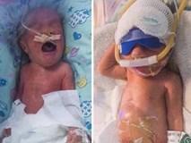 Ca sinh ba hy hữu: 1 bé sinh thường hôm trước, 2 bé đẻ mổ hai ngày sau