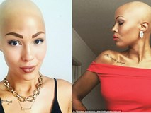 Tưởng mình bị ung thư khi tóc rụng dần, 12 năm sau, cô trở thành một người mẫu xinh đẹp với chiếc đầu trọc lóc