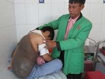 26 năm ngủ ngồi vì khối u nặng 15kg trên lưng