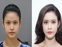 Trương Quỳnh Anh khiến người hâm mộ tự hỏi: phải chăng cô đã đụng chạm dao kéo quá đà?