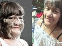 Cô gái 17 tuổi giữ kỷ lục nhiều lông nhất thế giới khiến mọi người kinh ngạc khi cạo sạch lông mặt!